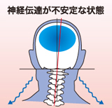 神経伝達が不安定な状態