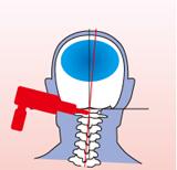 頚椎の歪み矯正